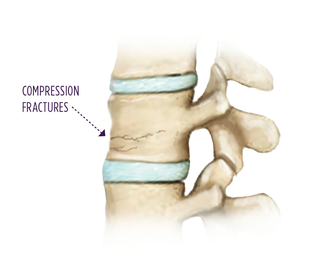 care plan for compression fracture Chiropractic care for a compression fracture it can happen to anyone who experiences a car accident or an unfortunate slip, but for a contact sports athlete, the.