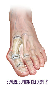 Bunions | Summit Orthopedics